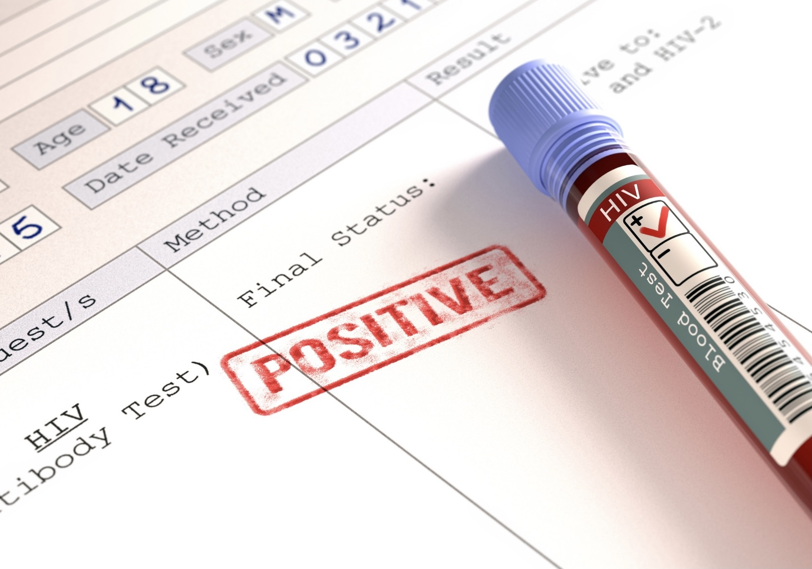 An HIV + result
